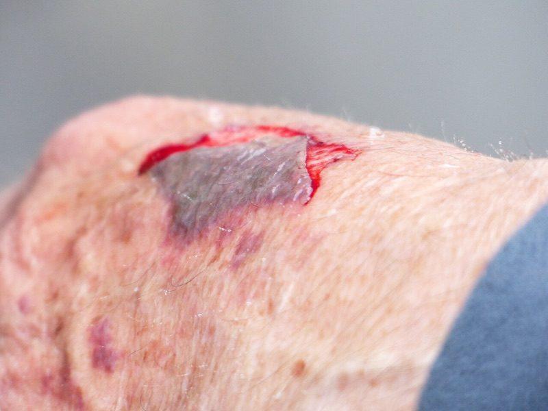 news-3d-skin-printer-wound