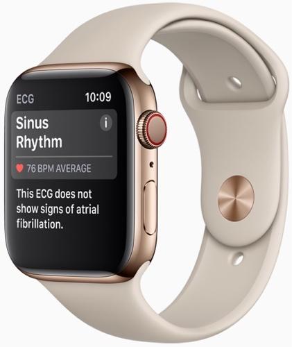 news-iphone-xs-apple-watch